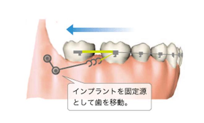 インプラントを固定源として歯を移動